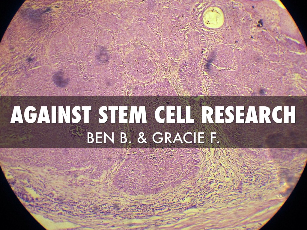 against stem cell research essays What is the christian view of stem cell research what does stem cell research entail can a christian support any of the methods of stem cell research.