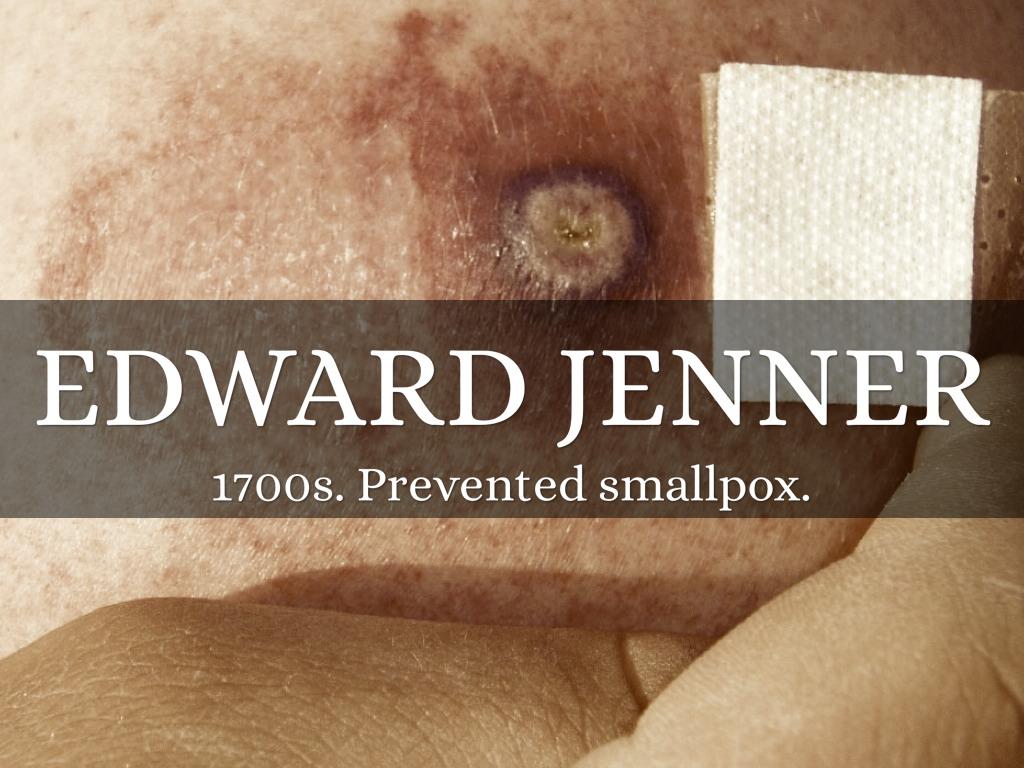 edward jenner and smallpox