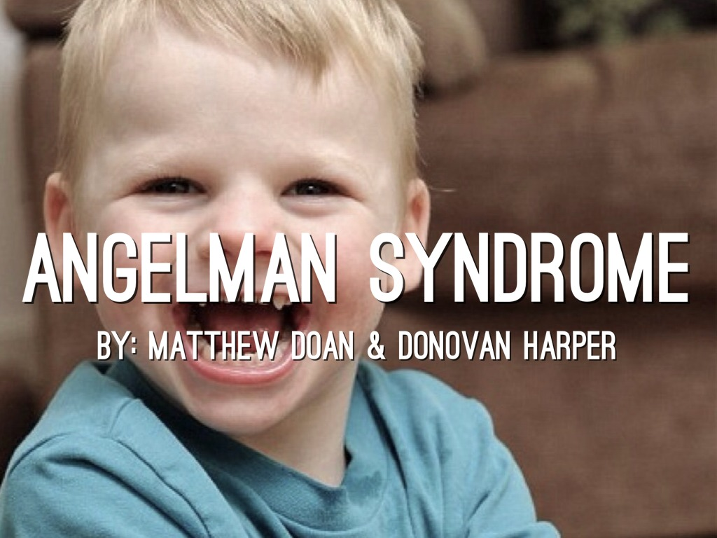 what is angelman syndrome Deletion of chromosome region 15q11-q13 causes both angelman syndrome and a totally different disorder called prader-willi syndrome however, while the deleted chromosome is of maternal origin in angelman syndrome, it is the paternal chromosome that is partially deleted in the prader-willi syndrome.