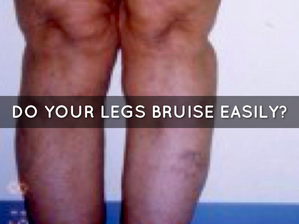Fat Legs? No! Lipedema by Alice Haugen