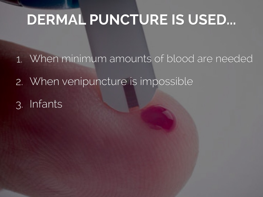Dermal Puncture