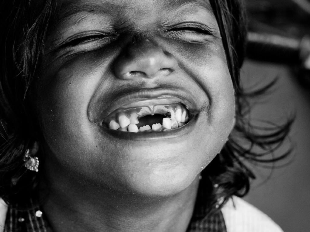 Девочка без зубов смеется картинки