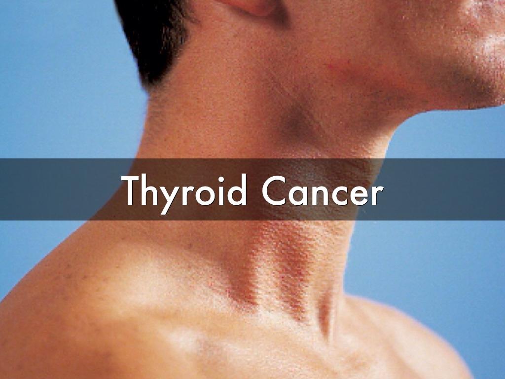 Thyroid Cancer By Abbie Morgan