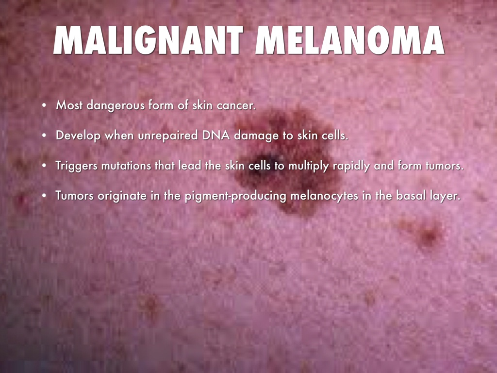 the clinical description of the skin disease melanoma Our disease specialties patient melanoma and other skin cancers clinical and host immunity in patients with advanced braf v600 mutant melanoma description.
