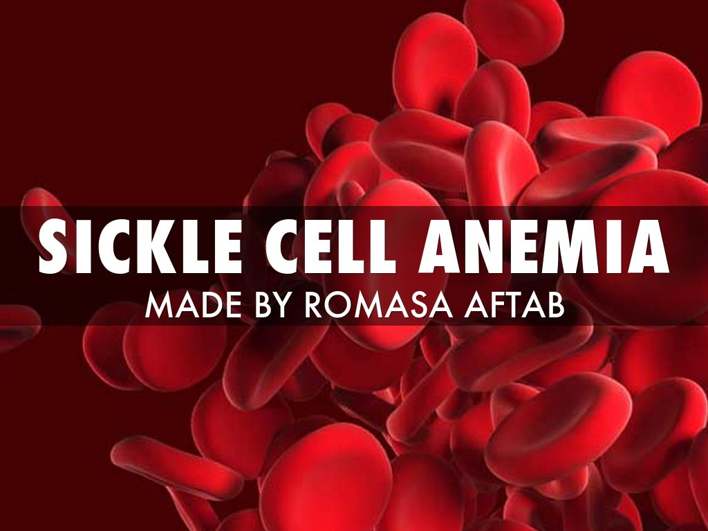 sickle cell anemia by romasa aftab