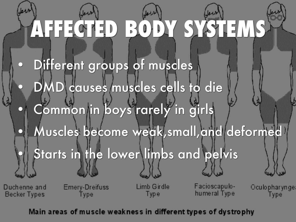 duchenne muscular dystrophy disease by austin banzon