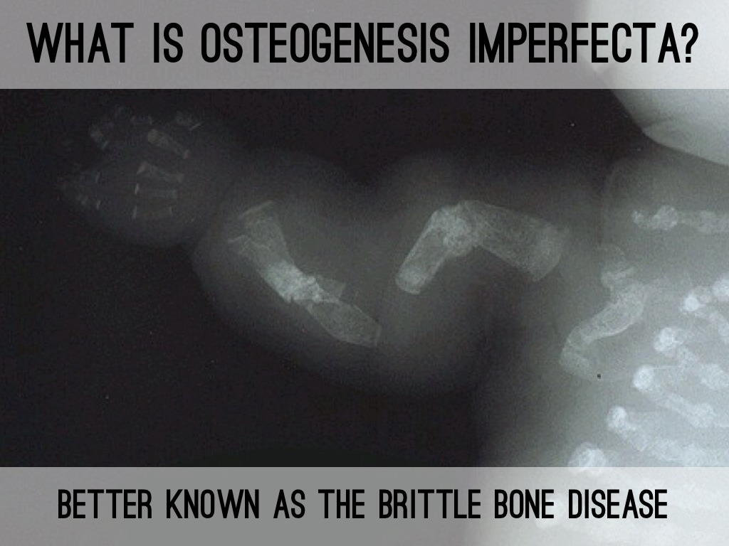 the signs and symptoms of osteogenesis imperfecta Type i is the mildest form of osteogenesis imperfecta and type ii is the most severe other types of this condition have signs and symptoms that fall somewhere between these two extremes increasingly, genetic factors are used to define the different forms of osteogenesis imperfecta.