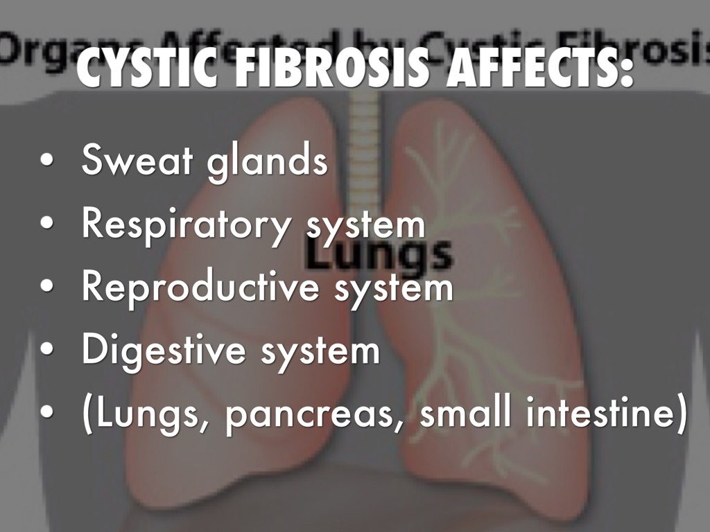 Cystic Fibrosis by Allie Zimmerman