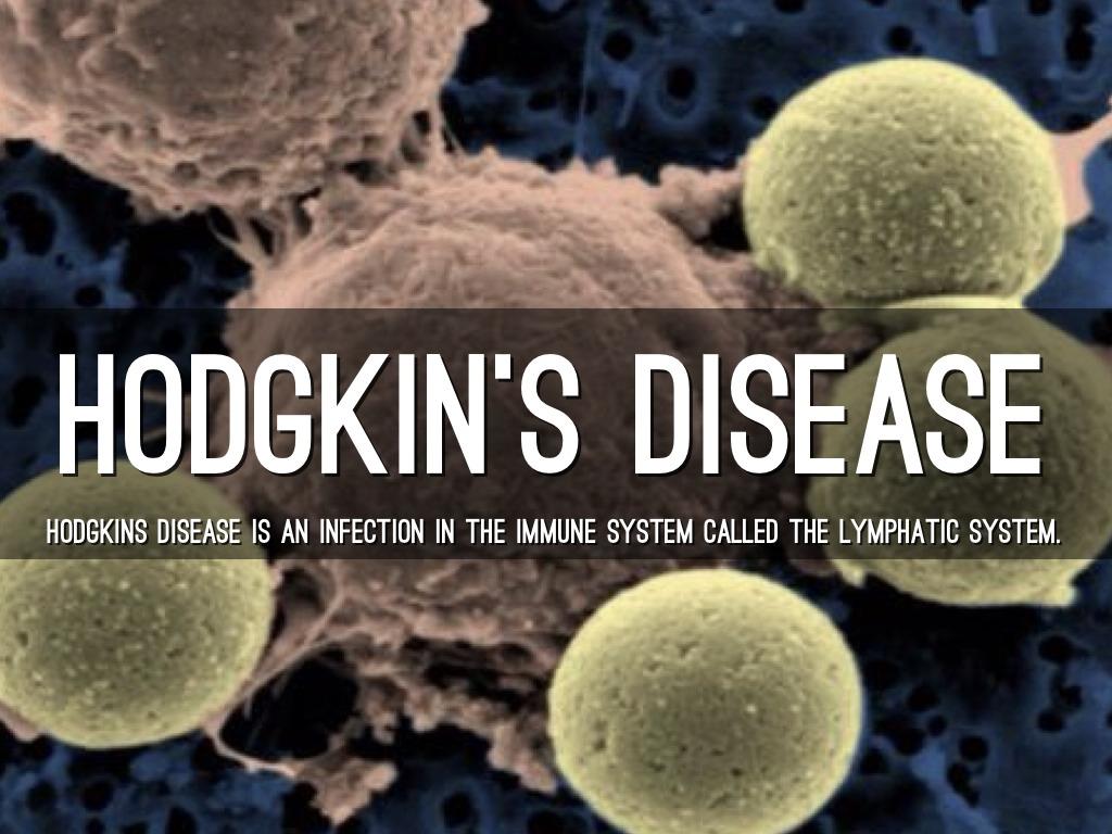 hodgkins disease essay Hodgkins disease david garcia santa barbara college 8 december 2011.