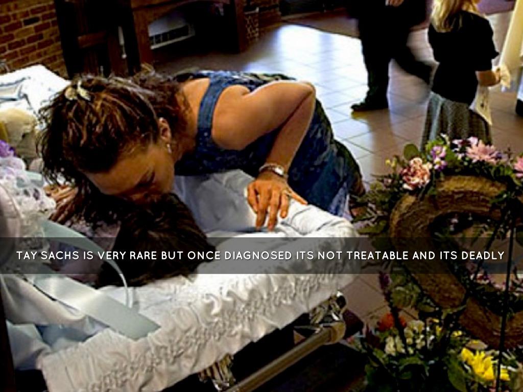 Прикасаться или обнимать умершего человека во сне обозначает, что вы справились со старыми страхами.