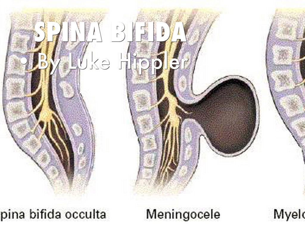 Spina bifida by Luke Hippler