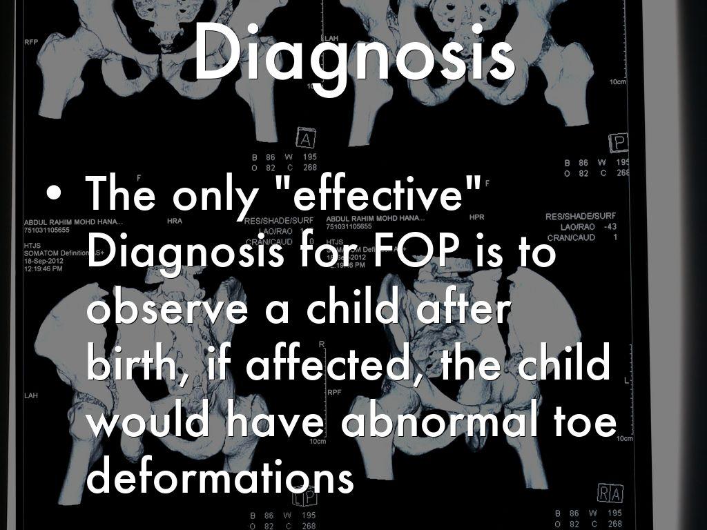 Fibrodysplasia Ossificans Progressiva (FOP) by