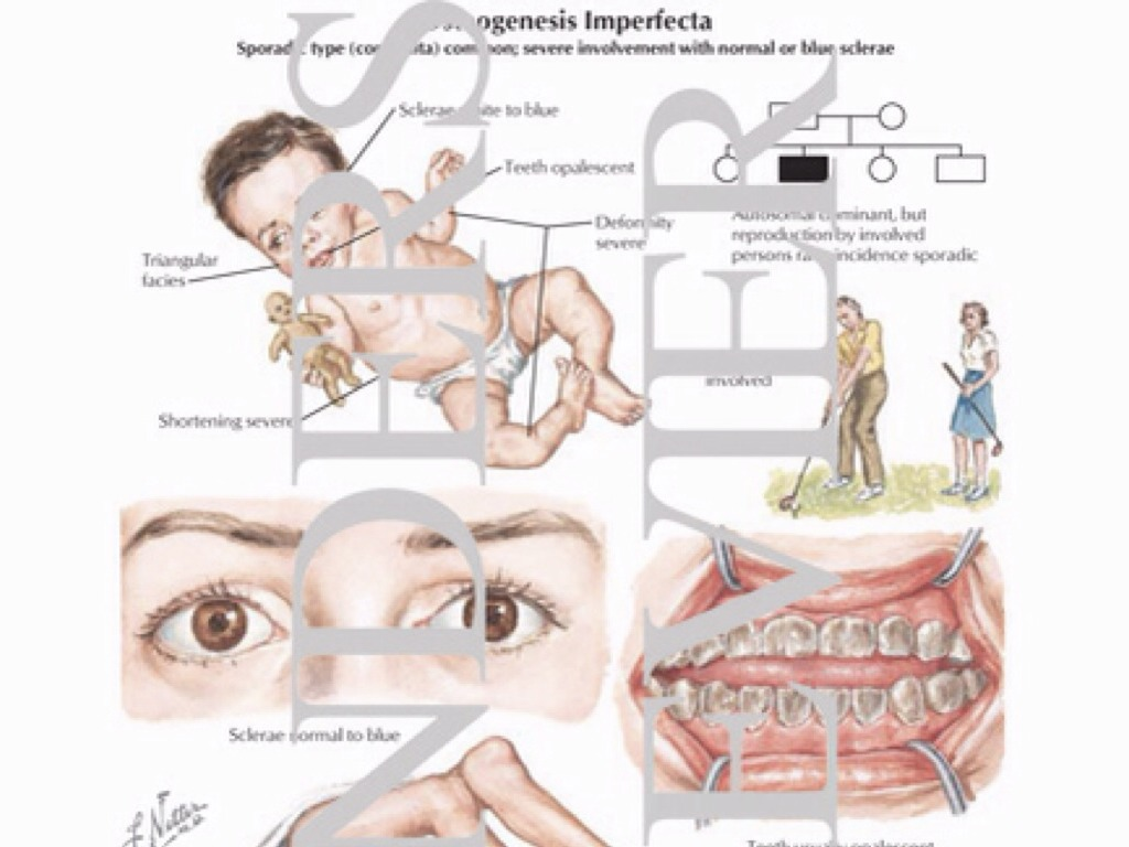 Osteogenesis Imperfecta - Types, Causes and Treatments