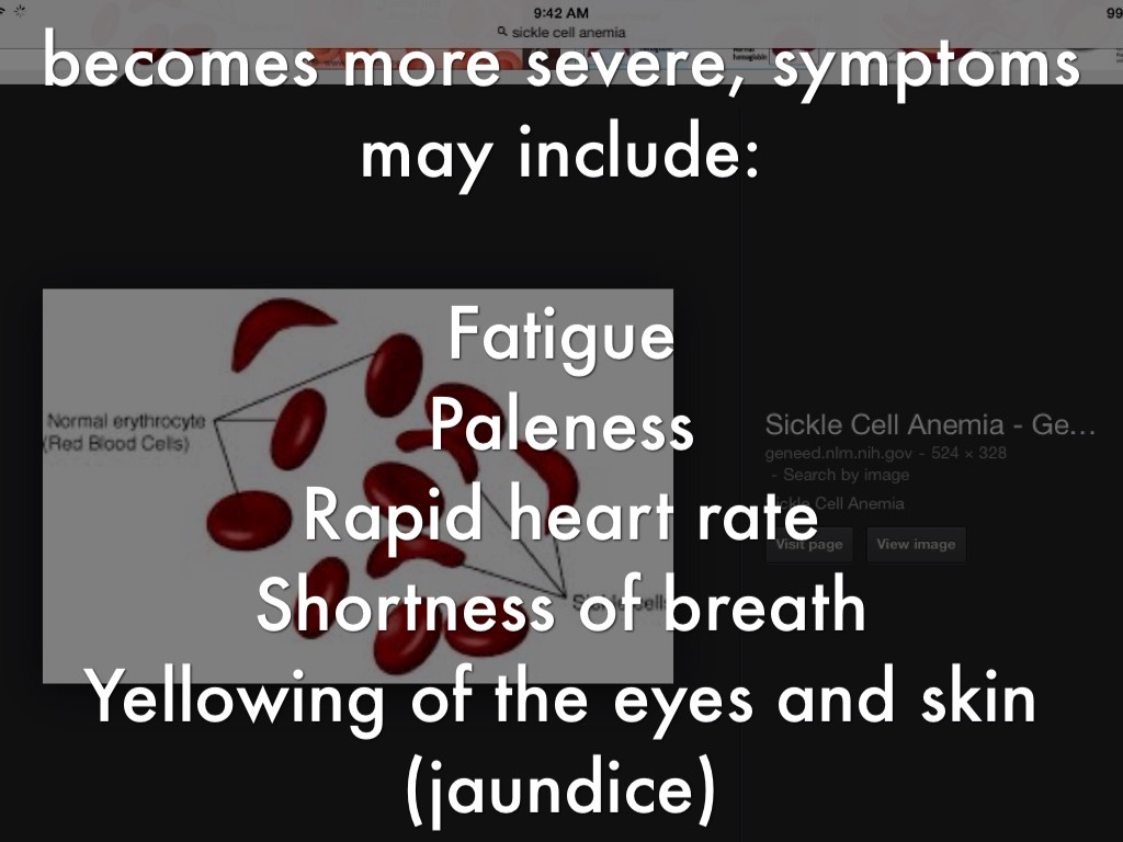 Sickle Cell Anemia by Kj Weldon