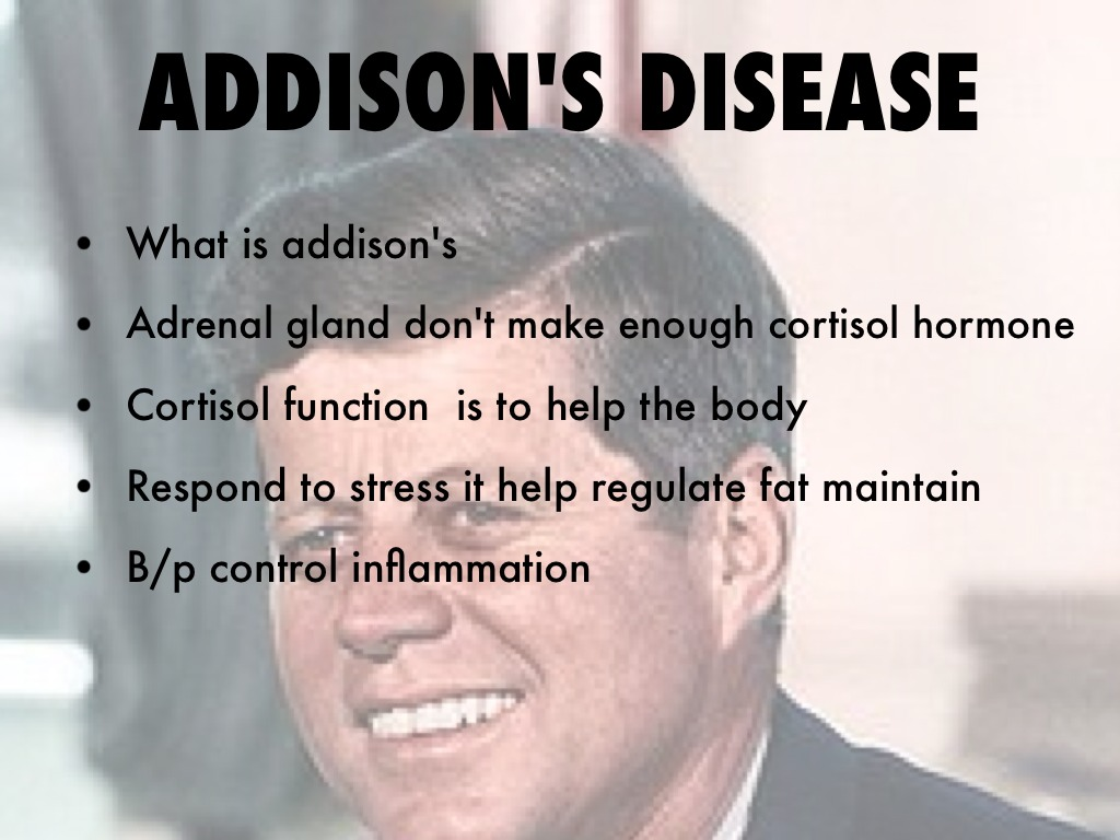 Addison's Disease by Herbreezeyawn Johnson