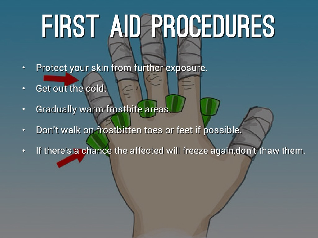 First aid for frostbite 43