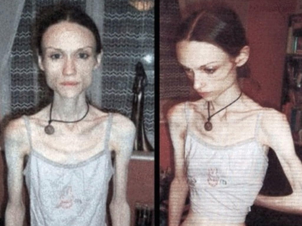 the effects of anorexia and bulimia on the human body Anorexia nervosa is an eating disorder in which a person is obsessed with weight, body shape and food intake to the point of self-imposed starvation anorexia symptoms frequently develop over a period of years in women and men with certain genetic, emotional or life-experience predispositions.