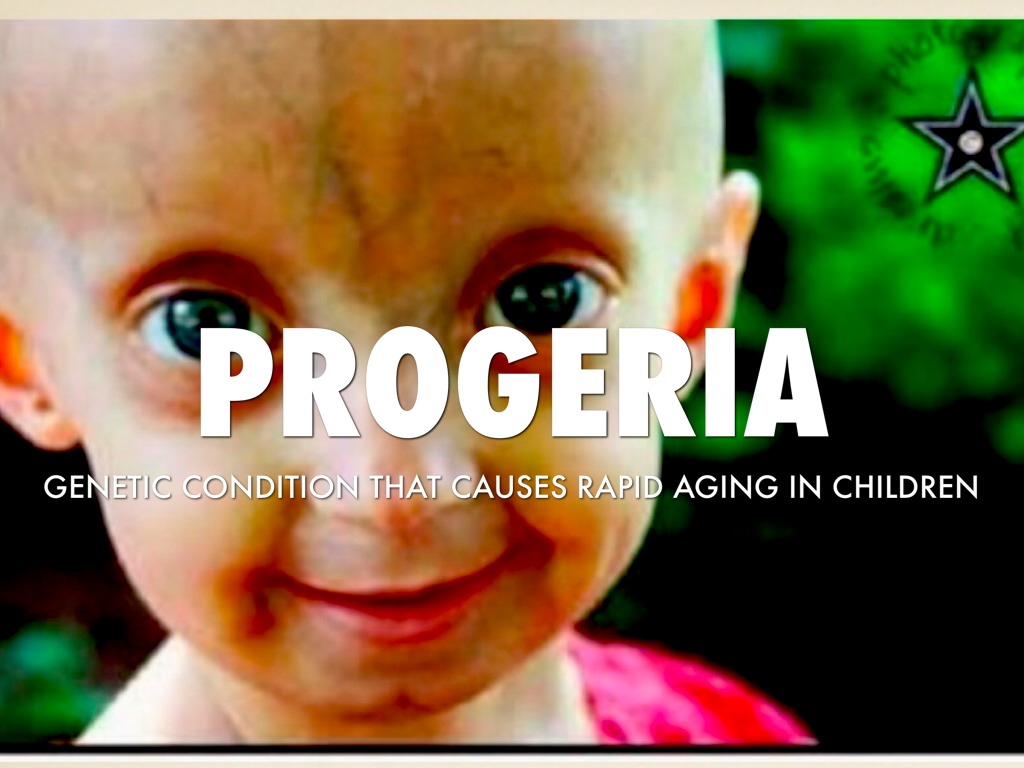 progeria outline Discovery lecturer outlines rare premature aging disorder by: melissa marino the first thing gordon did was to form the progeria research foundation.