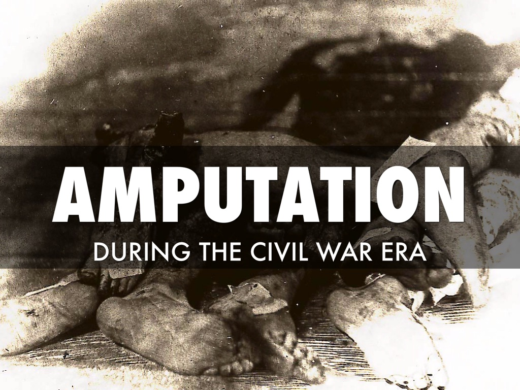 civil war era amputation by alicia anthony