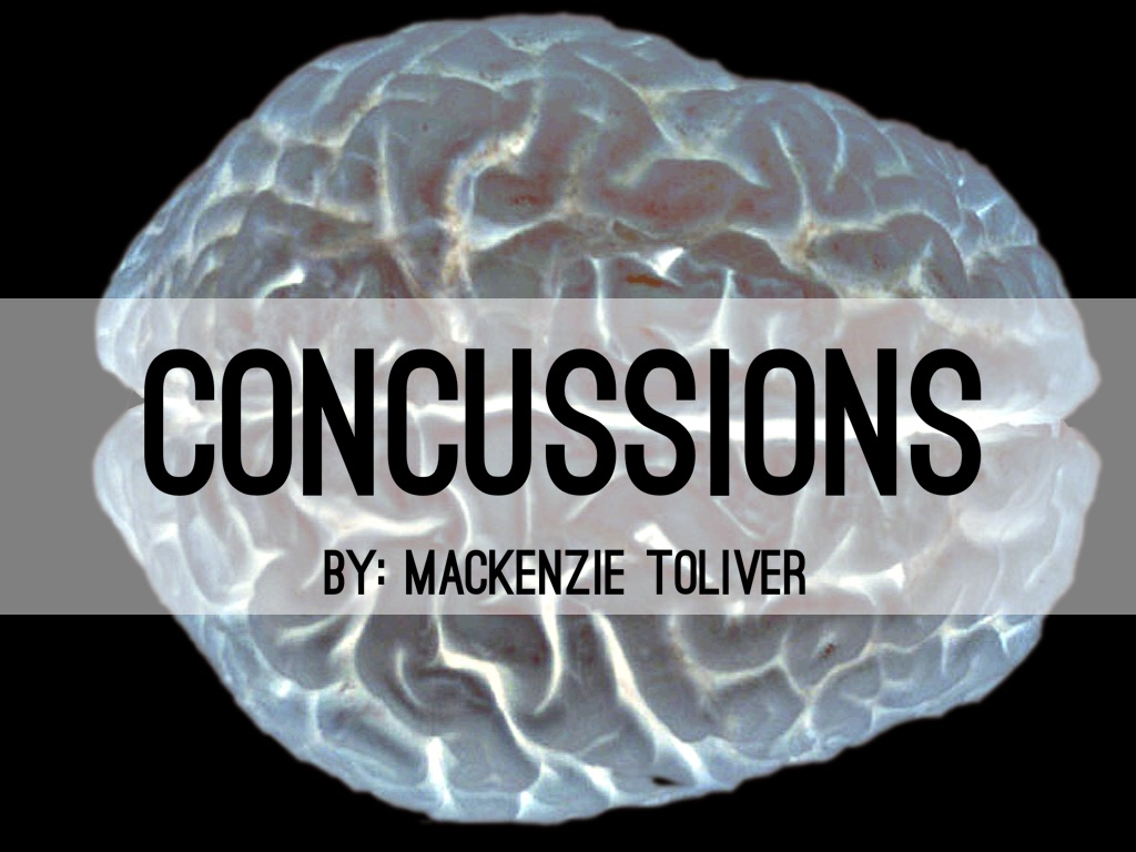concussions Signs and symptoms of concussions and brain injury when it comes to tbi, the signs — things that you, or others, observe — can be subtle and may not appear immediately.