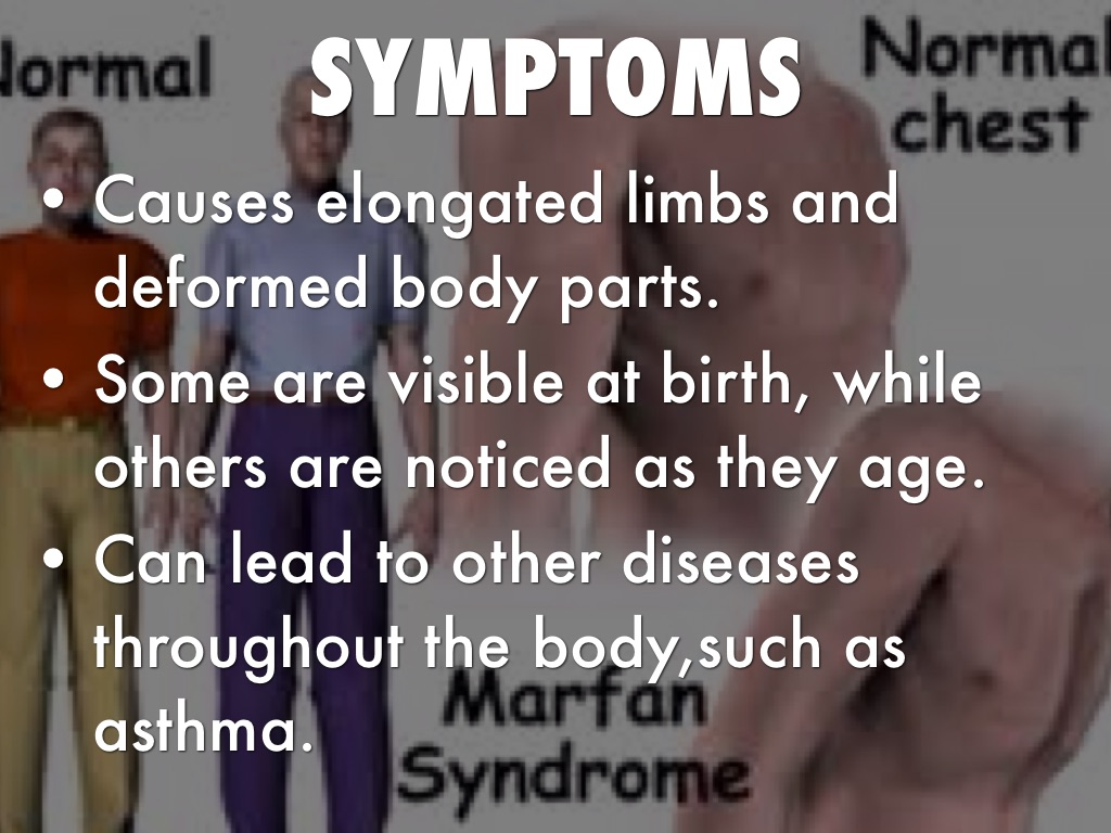 marfain syndrome causes and effects Marfan syndrome is a disorder that affects connective tissue connective tissue works to support and give form to all parts of the body, including the organs, bones, and muscles because marfan syndrome weakens connective tissue throughout the body, it can cause a wide range of health problems.