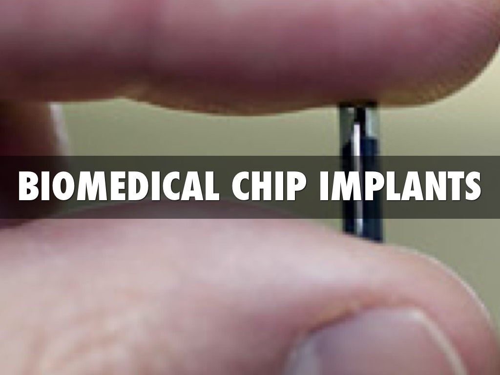 biomedical chip implants