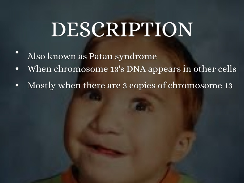 trisomy 13 Resources for supporting families of babies diagnosed with trisomy 13 (patau's syndrome) information about diagnosis, cause, treatment, symptoms.