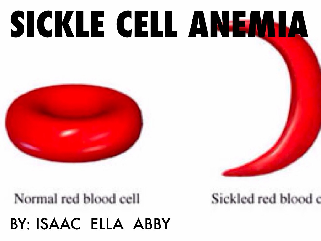 sickle cell anemia by ella lilleberg sickle cell anemia