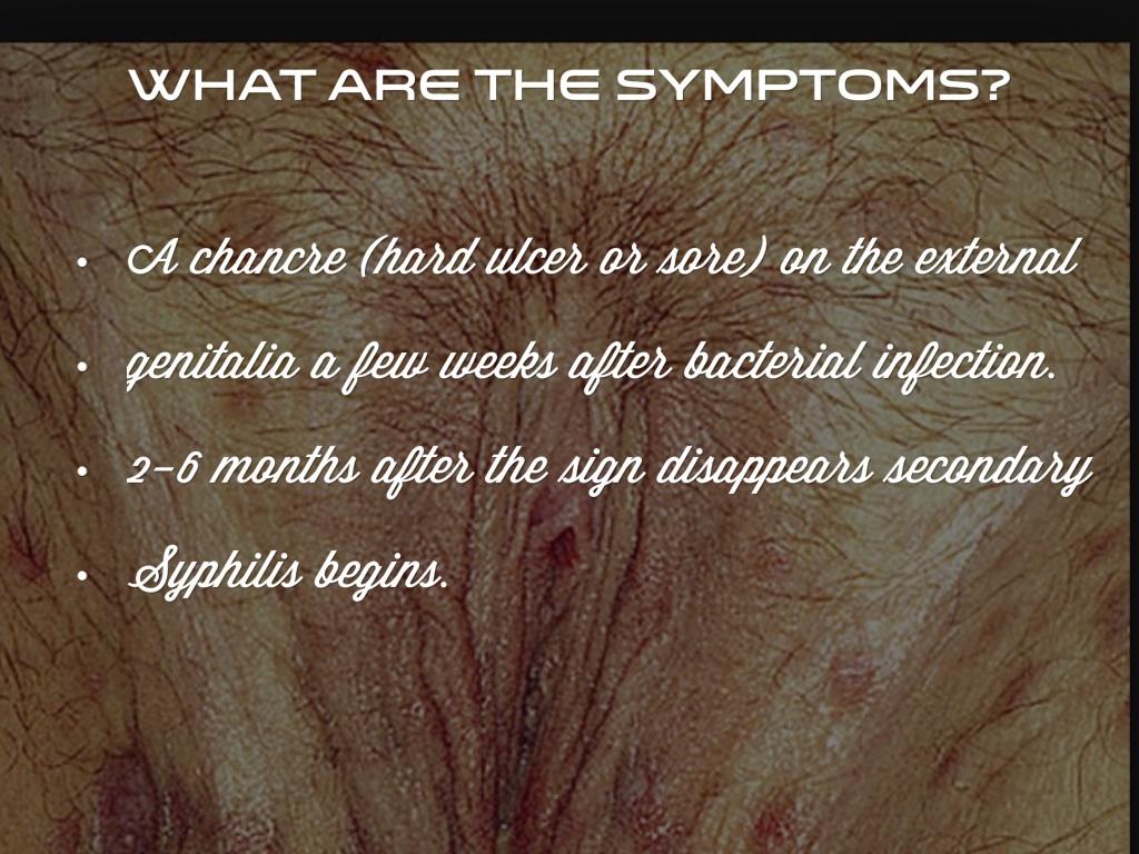 Syphilis by Katie Gorgus Cardiovascular Syphilis Symptoms