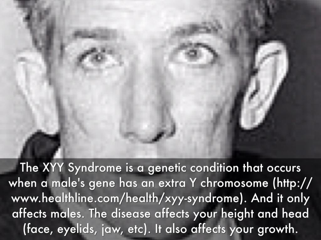 Xyy syndrome symptoms