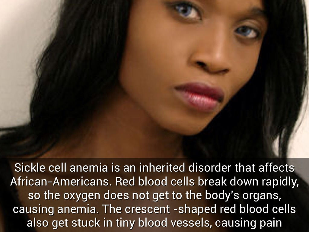 an introduction to the inherited disease of sickle cell anemia affecting thousands of americans