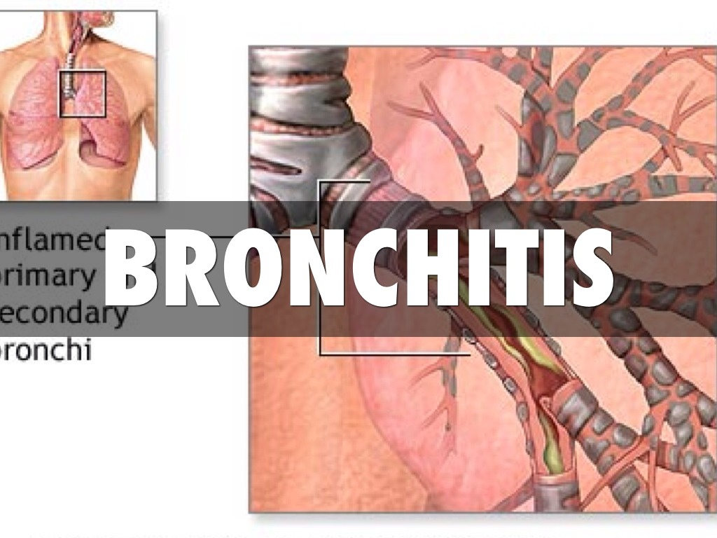 the description of bronchitis and how it forms Bronchitis is a disease of  another form of chronic bronchitis,  in addition to the activities mentioned in the description of acute bronchitis is a thorough.