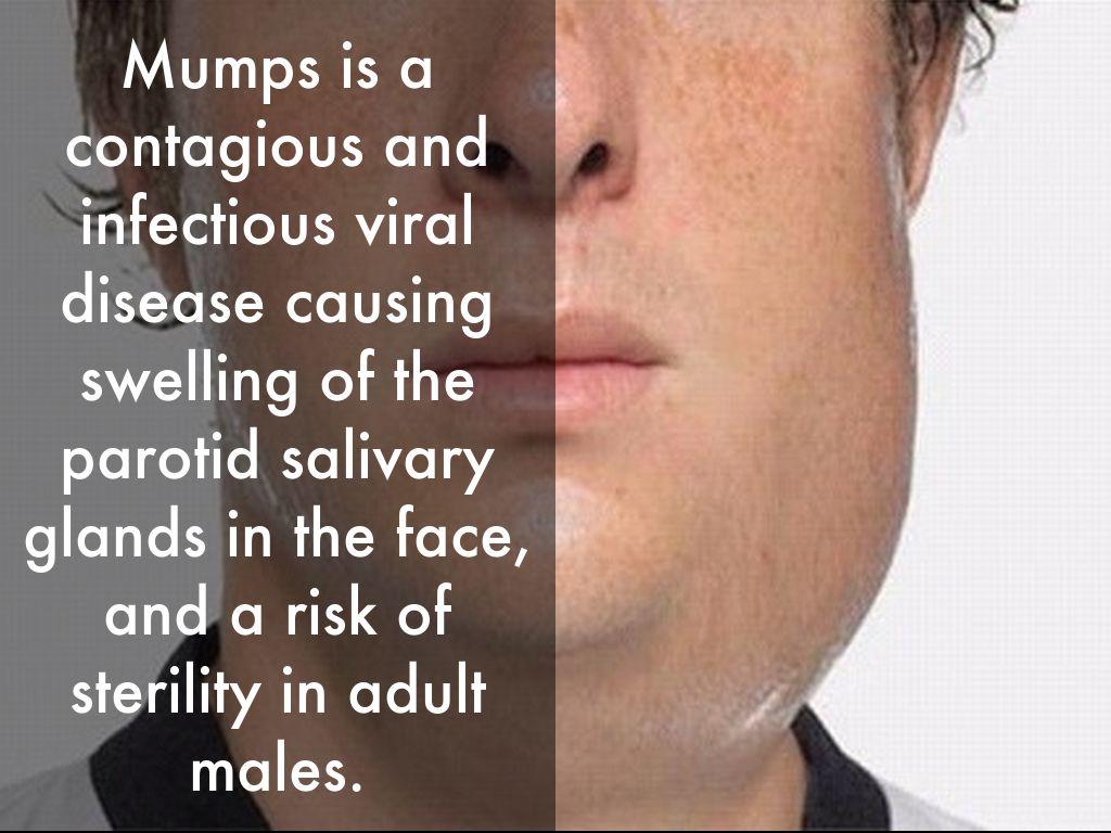 the characteristics of mumps a viral disease