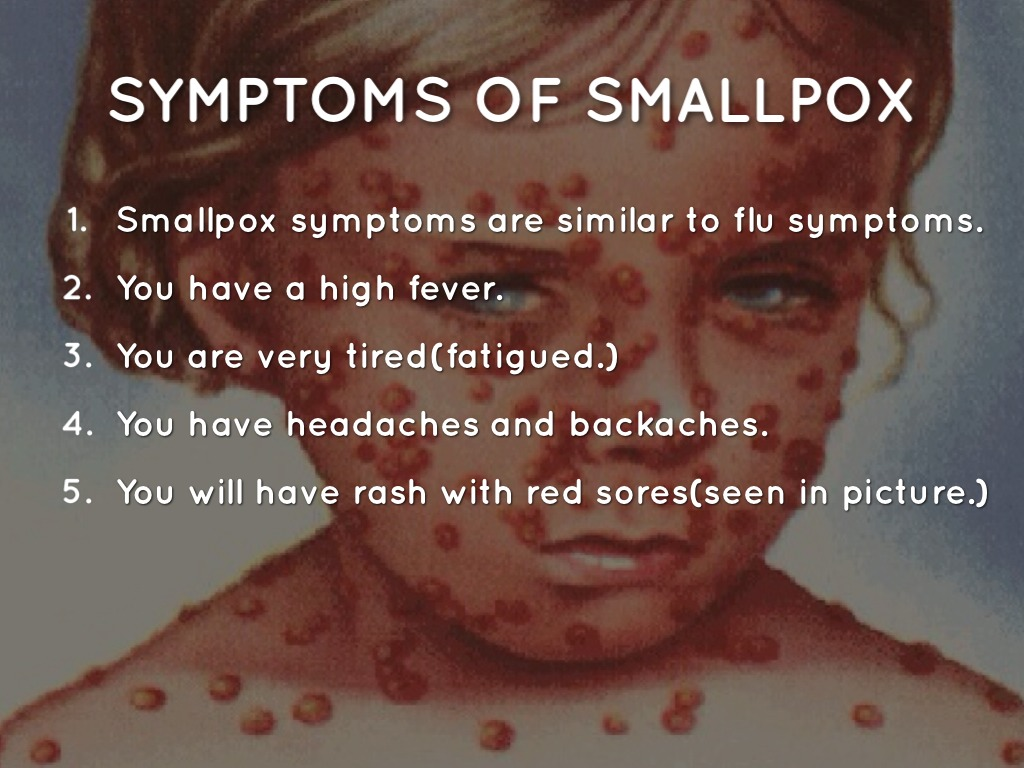 the spreading and symptoms of smallpox Smallpox is an ancient disease caused by the variola virus early symptoms include high fever and fatigue the virus then produces a characteristic rash, particularly on the face, arms and legs.