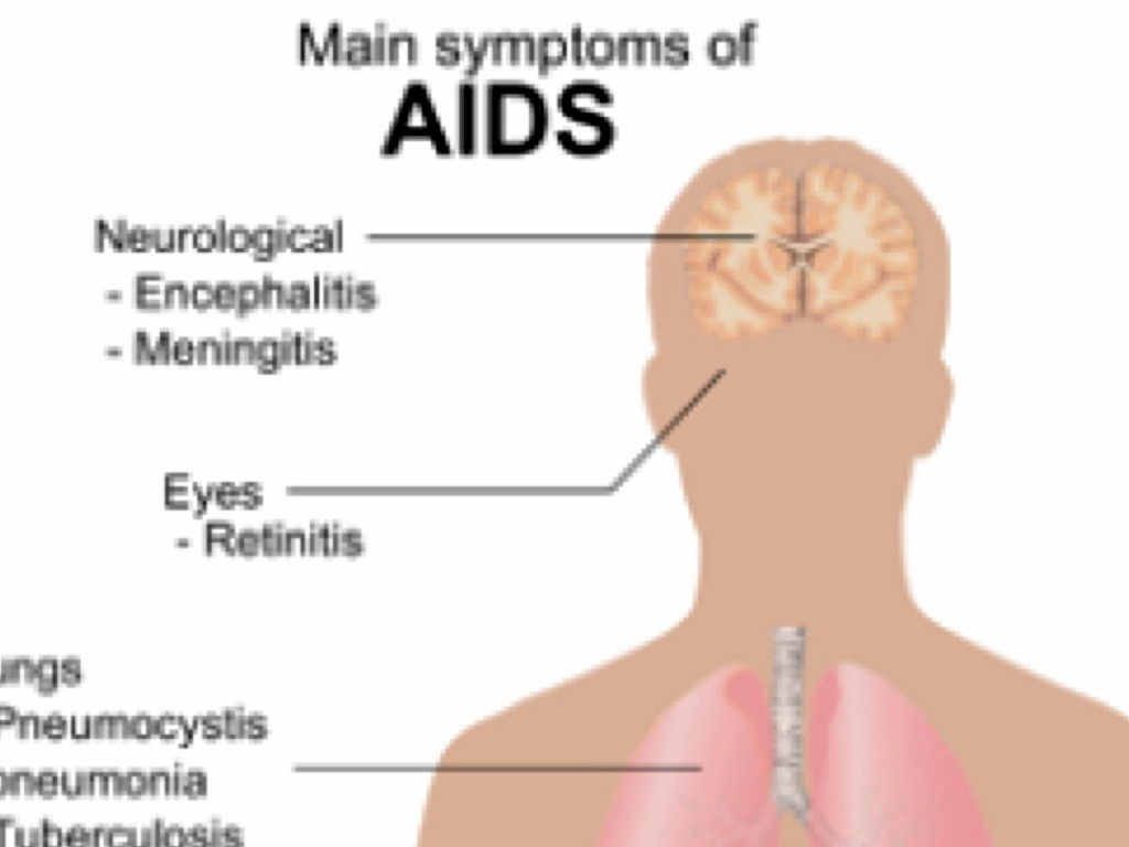 A Comprehensive Guide to HIV and AIDS