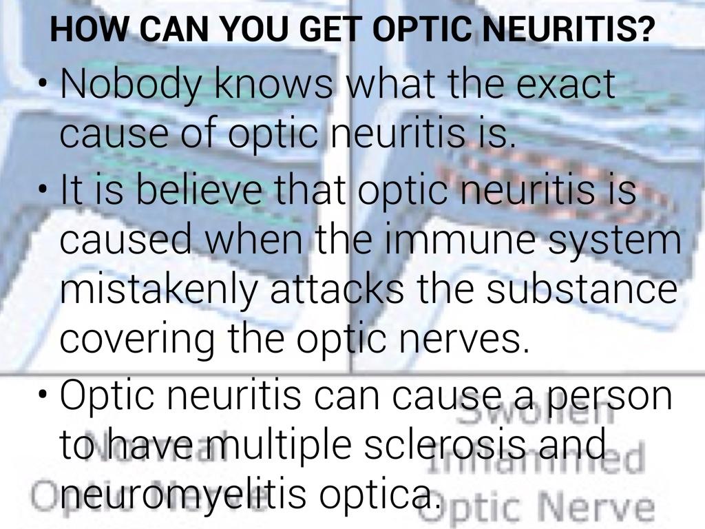 Optic Neuritis by Jalen Judkins