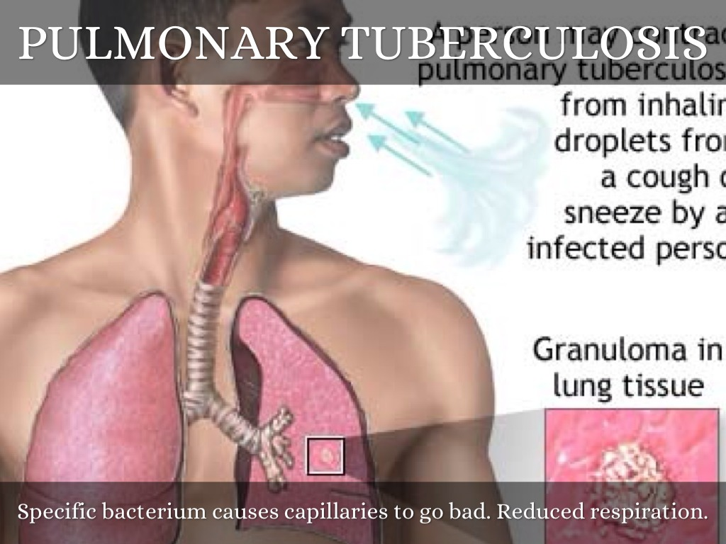 a study on the cause symptoms and treatment of tuberculosis Tuberculosis infection requires a difficult and lengthy treatment learn why tuberculosis symptoms can come back, even if you take medication the right way.
