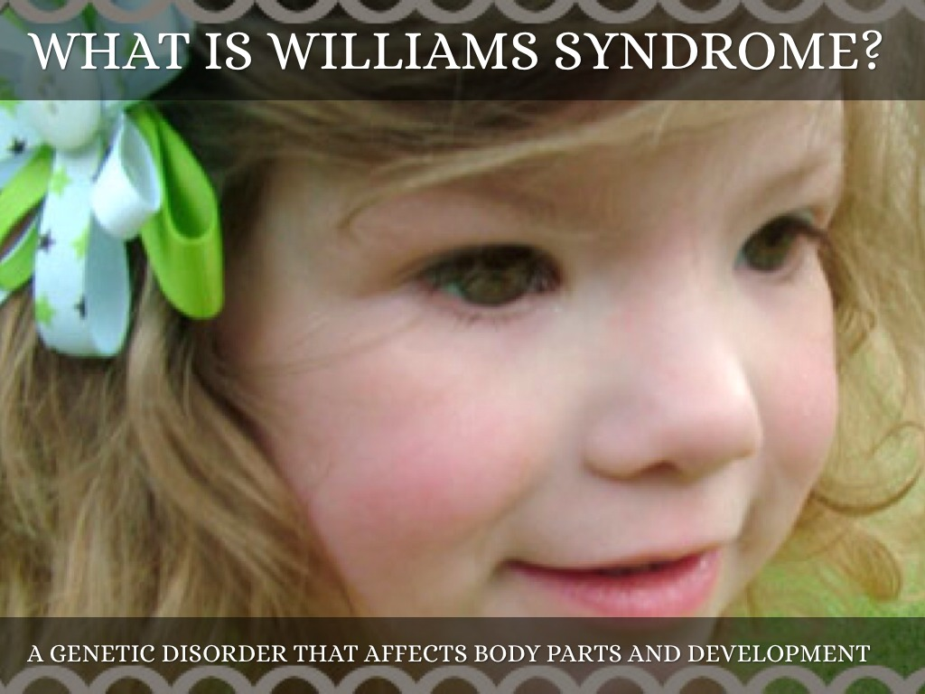 a discussion on williams syndrome Williams syndrome is a developmental disorder that affects many parts of the body this condition is characterized by mild to moderate intellectual disability or learning problems, unique personality characteristics, distinctive facial features, and heart and blood vessel (cardiovascular) problems.