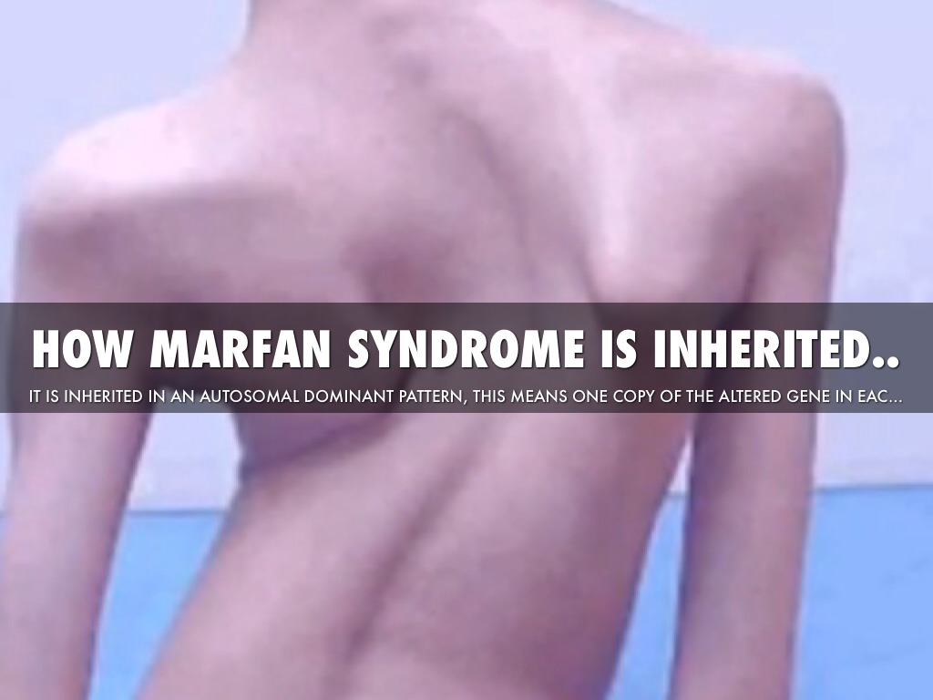 the name of my disease is marfan syndrome essay Aorta disease and marfan syndrome the aorta is the large artery that leaves the heart and provides oxygen-rich blood to the rest of your body these two things can cause the aorta to widen or tear.