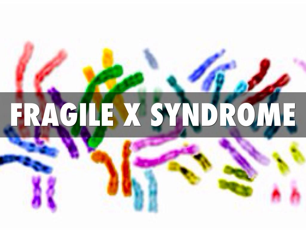 Fragile X Syndrome By Aeva Schrambach