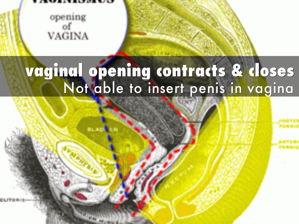 Treatment Unconsummated Sex By Ashok Koparday-5787