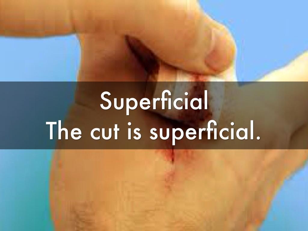 Superficial cut - gm6.info