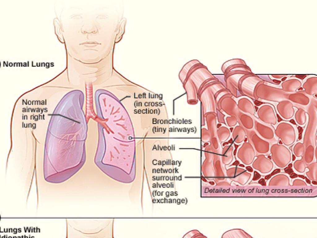 Pulmonary Fibrosis by orninpai000