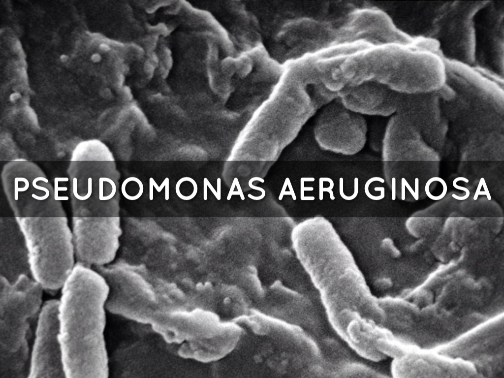 case study pseudomonas aeruginosa Proteomics of bacterial pathogens: pseudomonas aeruginosa infections in a case study authors nathan j pseudomonas aeruginosa is an excellent example of a.