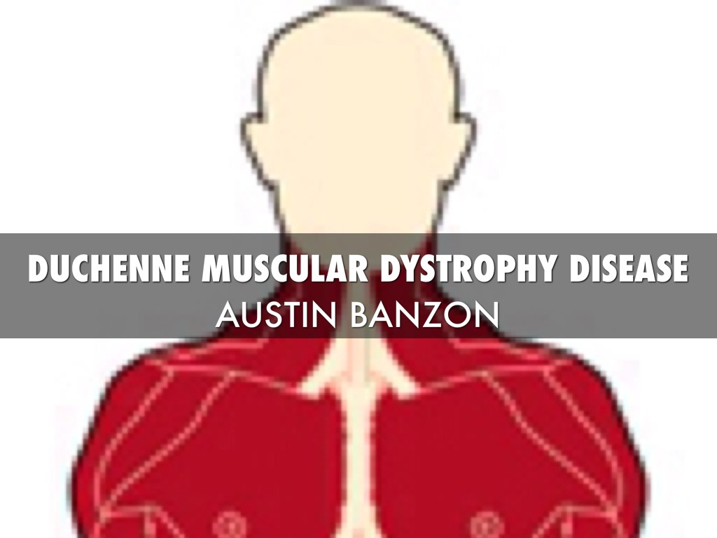 muscular dystrophy Muscular dystrophy is a group of inherited disorders that cause muscle weakness and loss of muscle tissue, which get worse over time.
