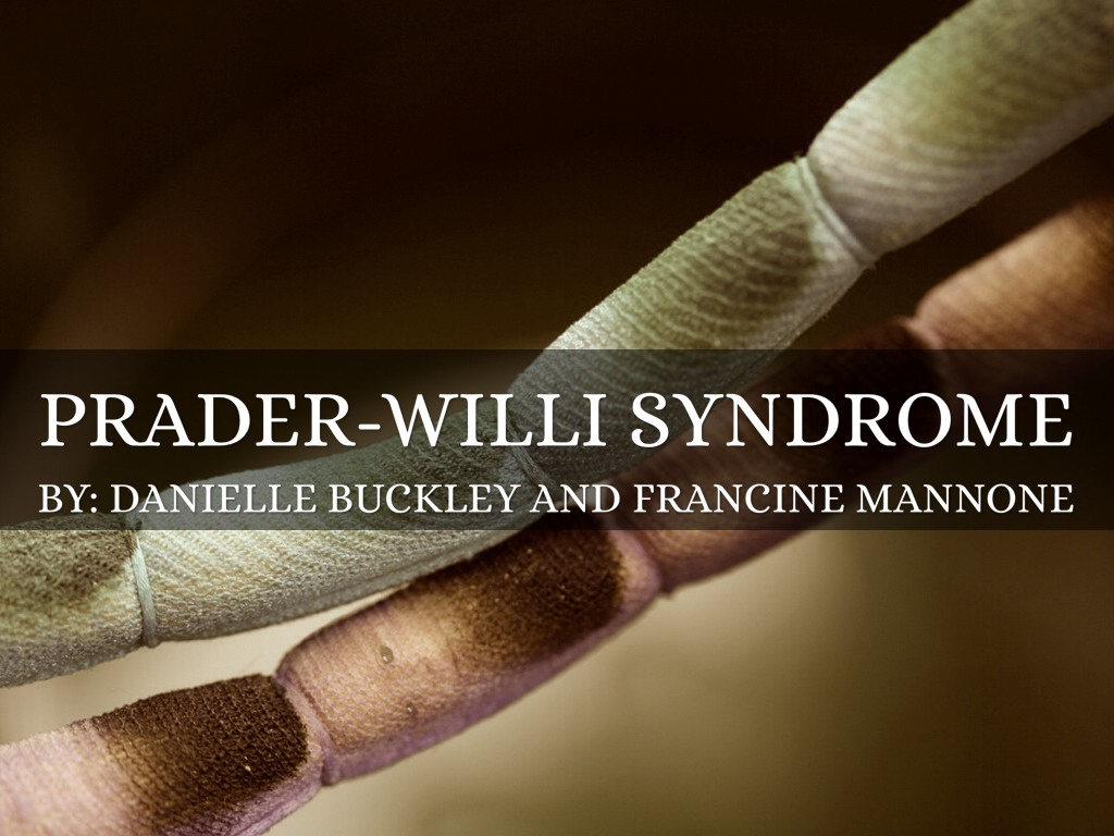 Prader Willi Syndrome by dbuckley0046