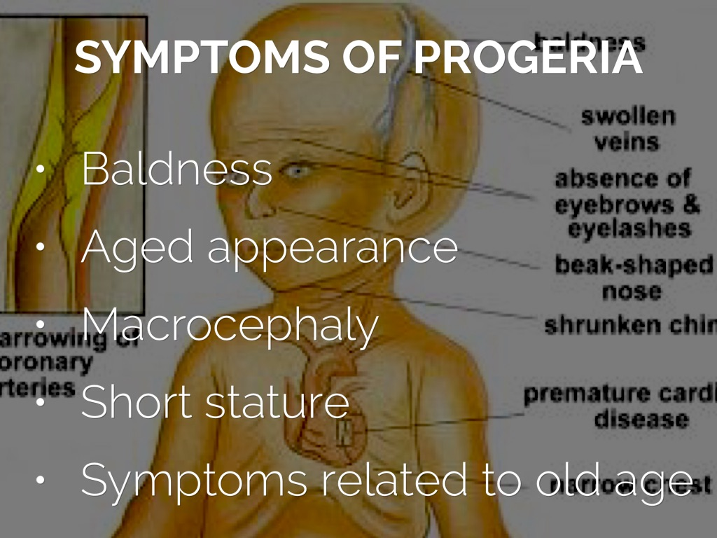 progeria outline Genetic counselor report why did this happen progeria is caused by a mutation in the gene called lmnathe lmna gene produces the lamin a protein which is the structural scaffolding that holds the nucleus of a cell together.