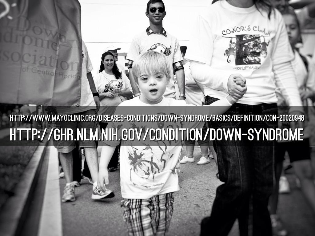 Down Syndrome Brochure by Gabby Herrera