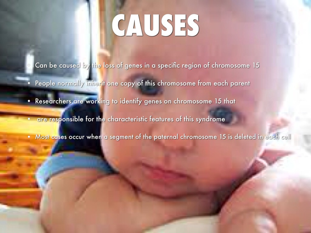 the prader willi syndrome Who has prader-willi syndrome (pws) pws can occur in any family, and cannot be prevented there is no known cause what is prader-willi syndrome.