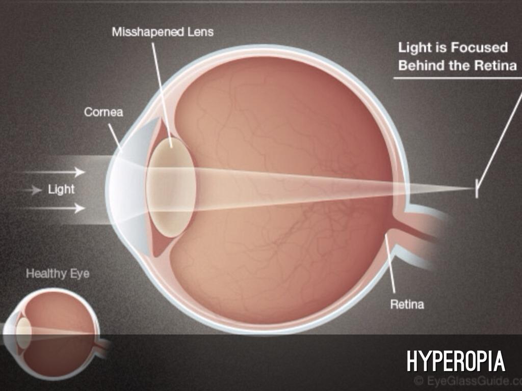 amikor mind a myopia, mind a hyperopia